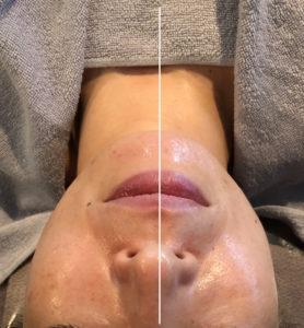 肌本来の透明感を生み出すには お肌のうぶ毛も取り去ることが必要です  ハーブピーリングと同じ作用に うぶ毛を同時で取り去ることの可能な フェイシャルワックス脱毛は   肌再生でターンオーバーを促し 艶やかなお肌に瞬間に変わる感動の施術  どんな方にでもお勧めできる肌再生フェイシャルエステです